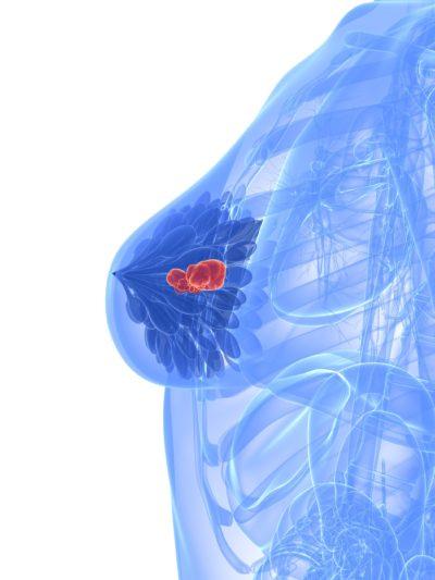 hormonspiral og øget risiko for brystkræft